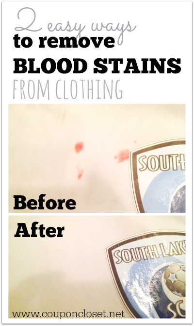 How To Remove Blood Stains From Clothing One Crazy Mom