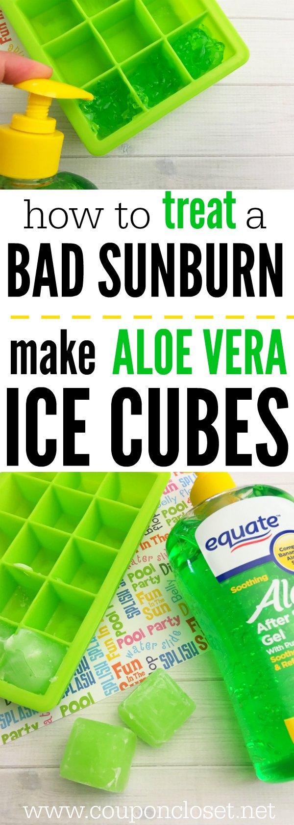 how to treat a bad sunburn with aloe vera ice cubes